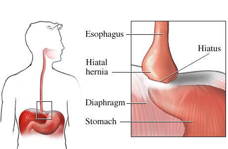 what is hiatal hernia - nursing crib, Cephalic Vein