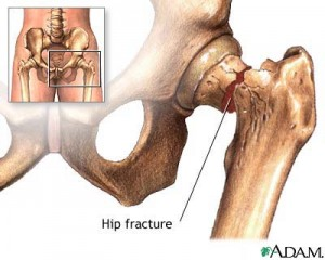 hip fracture1 300x240 Complications of Fractures