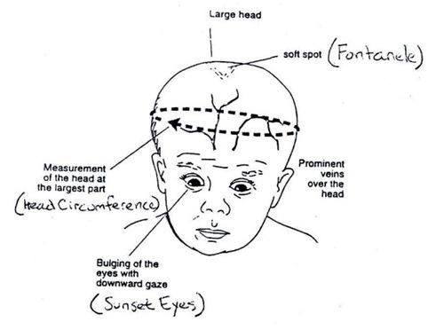 hydrocephalus picture