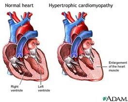 hypertrophiccardiomyopathy thumb Cardiomyopathy