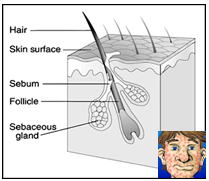 DISEASES OF INTEGUMENTARY SYSTEM