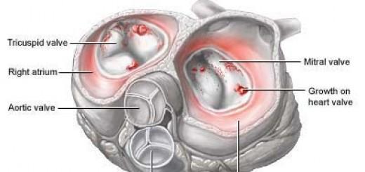 infectiveendocarditis.jpg