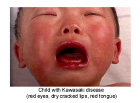 Acute Kawasaki Disease Symptoms