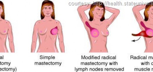 kindsofmastectomy.jpg