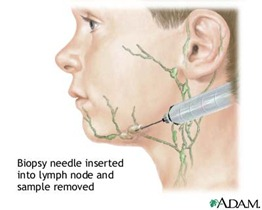 lymph node biopsy