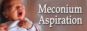 meconiumaspiration thumb Meconium Aspiration Syndrome