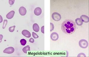 megaloblastic anemia 300x192 Megaloblastic Anemias