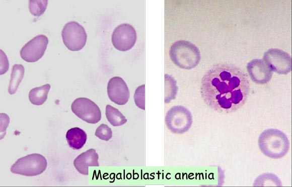 macrocytic anemia Megaloblastic anemias result most often from deficiencies of vitamin b 12 and folate ineffective hematopoiesis affects all cell lines but particularly rbcs diagnosis is usually based on a cbc and peripheral smear, which usually shows a macrocytic anemia with anisocytosis and poikilocytosis, large.
