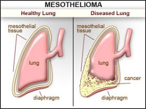 Mesothelioma Asbestosrelated Lung Cancer  Nursing Crib
