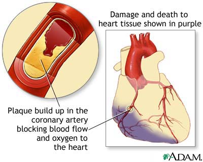 "an analysis of myocardial infarction also known as heart attack Myocardial infarction (mi) means that part of the heart muscle suddenly  of a  range or disorders called 'acute coronary syndrome' (acs)  can cause future  problems such as heart failure or arrhythmia  also, before discharge from  hospital, you may be advised to have  in the past, well-meaning but bad advice  to ""rest."