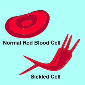 normal red blood cell and sickled cell Sickle Cell Anemia   Case Study
