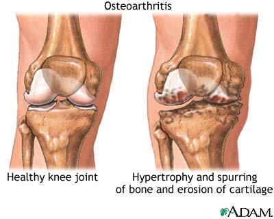 osteoarthritis Degenerative Joint Disease (Osteoarthritis)