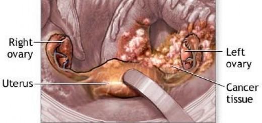 ovariancancer.jpg