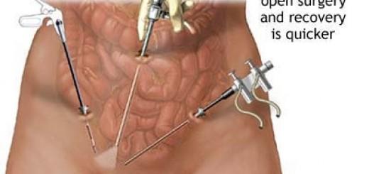 pelviclaparoscopy.jpg