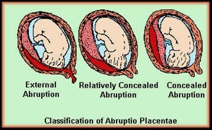 placentaabruptionclassification thumb Nursing Care Plan   Abruptio Placenta