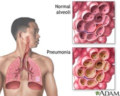 pneumonia thumb Nursing Care Plan   Pneumonia