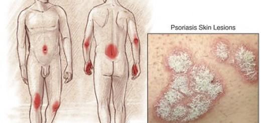psoriasis.jpg