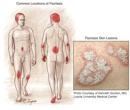 psoriasis causes and remedies