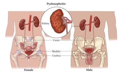 pyelonephritis.jpg