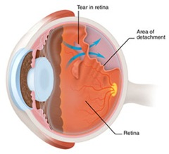 retinaldetachment thumb2 Retinal Detachment