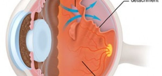 retinaldetachment.jpg