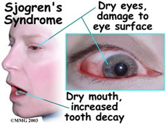 sjogrensdisease thumb Sjogrens Syndrome