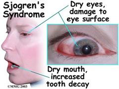 sjogrens disease
