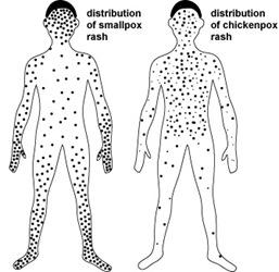 Chickenpox Vs Smallpox Nursing Crib