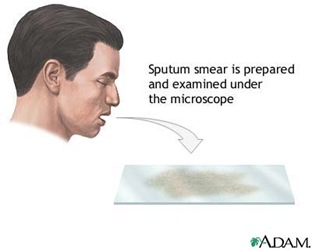 sputum-test