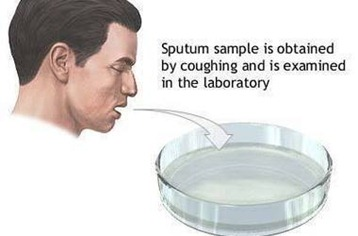 sputum culture test
