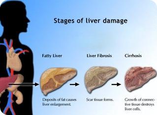 what causes liver jaundice