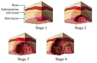 stages of pressure sores