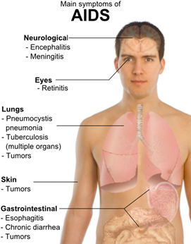 Symptoms_of_AIDS