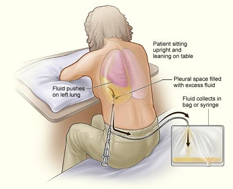 Cardiac Syndrome X Natural Treatment