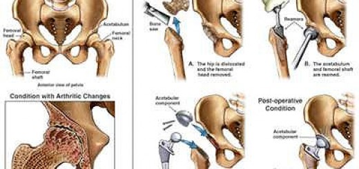hip reconstructive surgery Archives - Nursing Crib