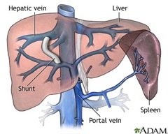 Transjugular intrahepatic portosystemic