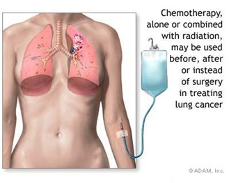 treatmentforlungcancer thumb Lung Cancer