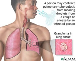 tuberculosis of the lungs thumb Pulmonary Tuberculosis (PTB) Case Study
