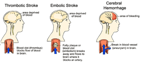types of strokes thumb1 Nursing Care Plan   Cerebrovascular Accident (CVA)