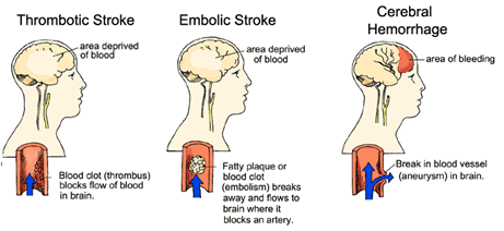 types-of-strokes.png