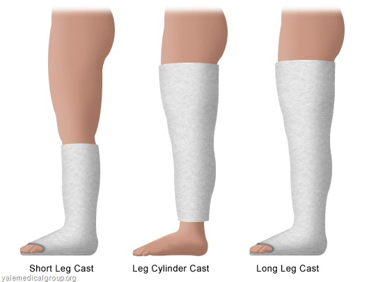 Types Of Cast, Molds And Indications