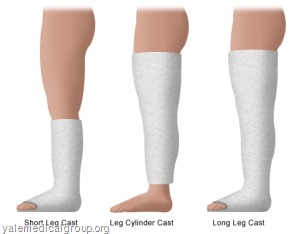 types of cast