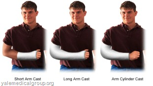 typesofcastarms thumb Types of Cast and Indications