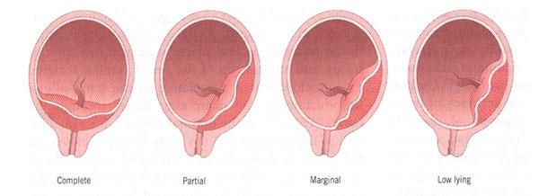 typesofplacenta1 Placenta Previa Case Study