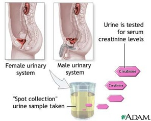 urinalysis thumb Routine Urinalysis Normal Laboratory Study Values