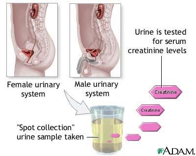 urinalysis.jpg