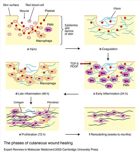 Wound Healing Page 2 Of 3 Nursing Crib